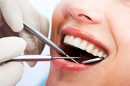 Dental Cleanings & Dental Exams 3 at Hawkins Complete Dental Service in Zanesville, OH