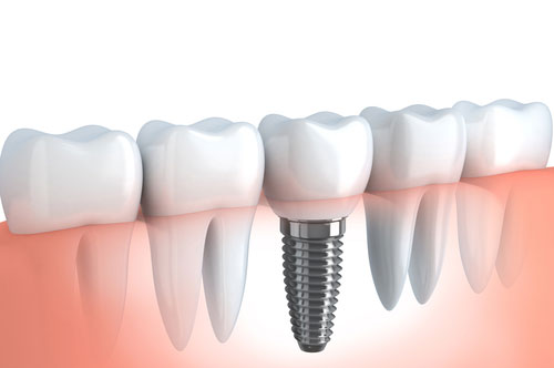 Dental Implants 2 at Hawkins Complete Dental Service in Zanesville, OH