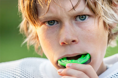 Mouthguards 1 at Hawkins Complete Dental Service in Zanesville, OH