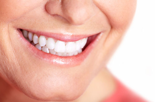 Teeth Whitening 1 at Hawkins Complete Dental Service in Zanesville, OH