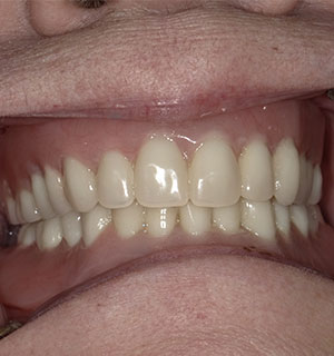 After Procedure 1 in Zanesville, OH by Dr. Charles Hawkins of Hawkins Complete Dental Service